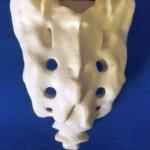 L3-S1 WS Bone