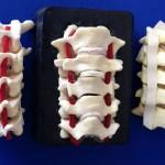 C3-C7 Vertebrae WS Bone